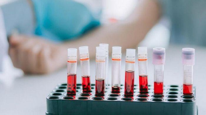 Анализ крови: эффективные методы диагностики организма